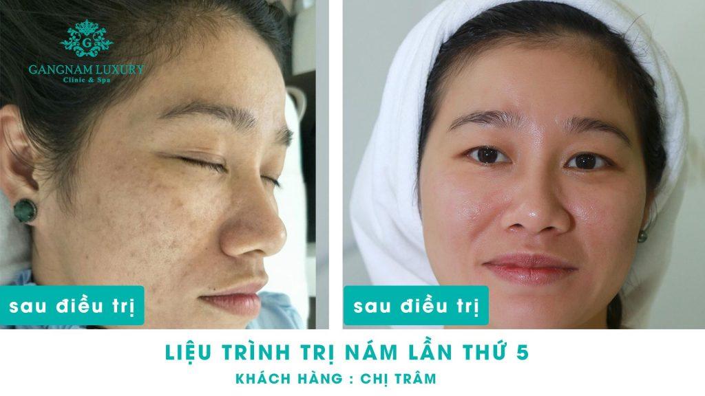 dieu-tri-nam, điều trị nám, phuong-phap-dieu-tri-nam, phương pháp điều trị nám