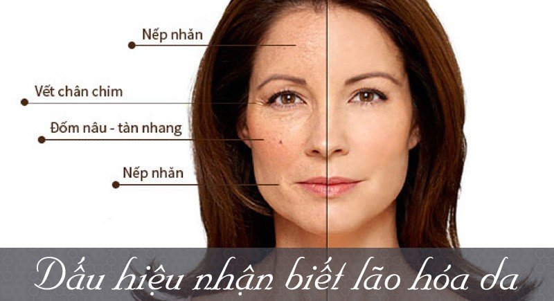 cang-da-mat, căng da mặt, phuong-phap-cang-da-mat, phương pháp căng da mặt