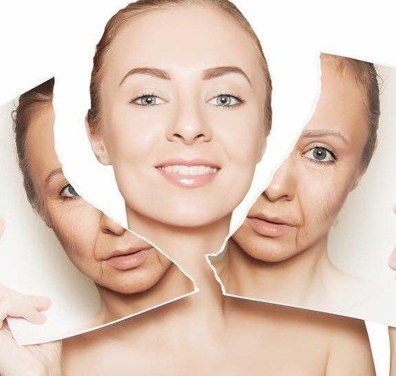 cang-da-mat, căng da mặt, phuong-phap-cang-da-mat, phương pháp căng da mặt, tre-hoa, trẻ hóa