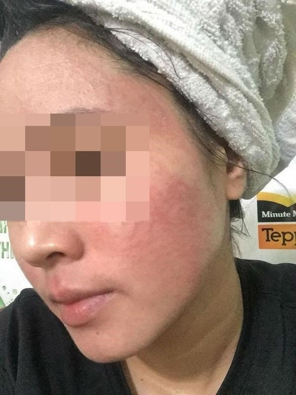 cham-soc-da, chăm sóc da, phuong-phap-lam-dep-da-mat, phương pháp làm đẹp da mặt