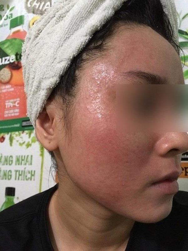 cham-soc-da-mat, chăm sóc da mặt, phuong-phap-lam-dep-da-mat, phương pháp làm đẹp da mặt