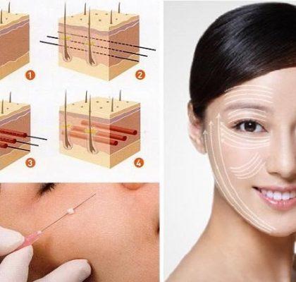 Căng da mặt bằng chỉ có thật sự hiệu quả như lời đồn | VIỆN THẨM MỸ GANGNAM