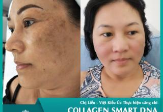 Yong cell – Quý bà Việt Kiều Úc U50 ngã ngửa vì chọn sai điều trị đồi mồi tại salon tóc ở Úc