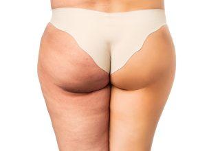 Điều trị bệnh sần vỏ cam – cellulite hiệu quả tại Gangnam
