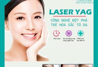 Điều trị tăng sắc tố da công nghệ cao Laser YAG