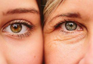 Trẻ hóa xóa nhăn đuôi mắt hiệu quả chỉ sau 1 giờ lấy lại 10 tuổi